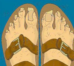 554b808b08b1dd The Sandal Oath
